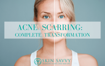 Complete Skin Transformation at Skin Savvy: Acne Scarring