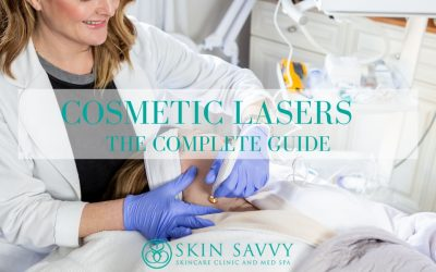 Cosmetic Lasers at Skin Savvy | The Complete Guide